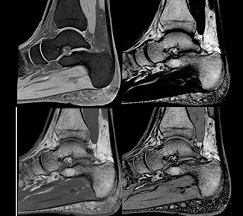 Foot and Ankle - MRI